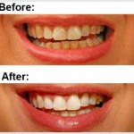 Home remedies for Yellow Teeth