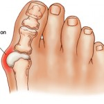 Home Treatments for Bunion